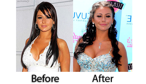 JWoww's 'Pillow Face' Pregnancy Weight or Plastic Surgery?